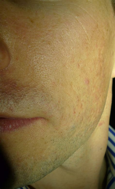 Acne scarring picture 18