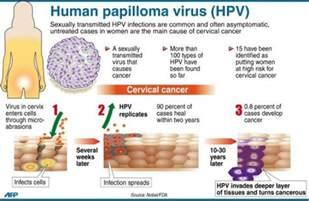 human papillomavirus symptoms picture 5