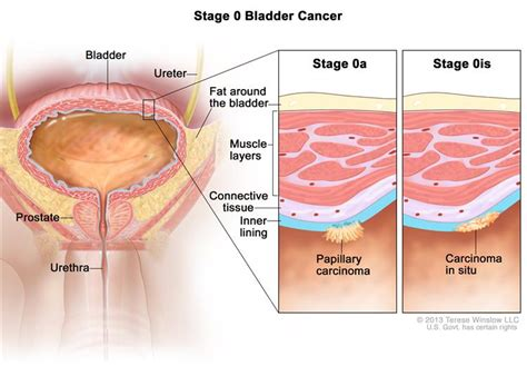 Cancer outside the colon picture 10