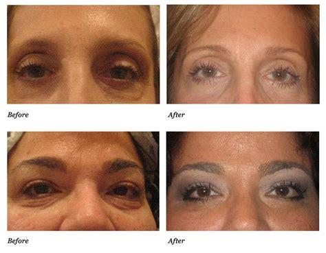 skin under eyes picture 1