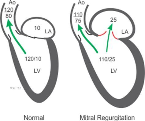 can mitral valve regurgitation may blood pressure low picture 2