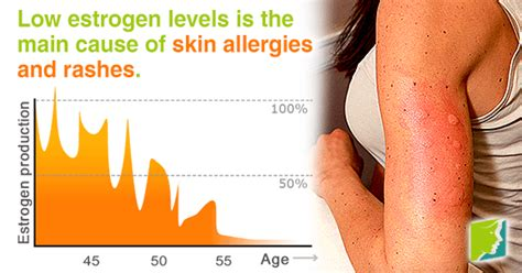 causes of changes skin condition picture 6