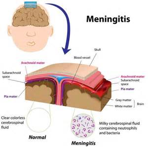 bacterial menigitis and hair loss picture 1