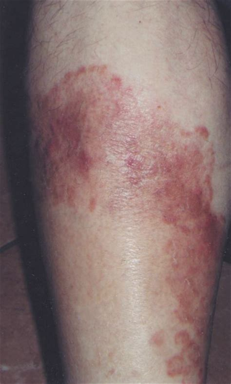 diabetic skin picture 11