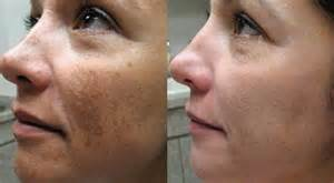chemical ona frican american skin picture 2