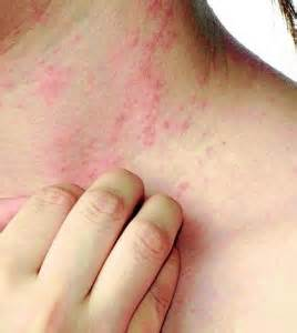 how can allergic reactions to amoxicillin manifest? picture 6