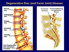 degenrative joint diease in the spine picture 18