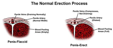 flaccid penis causes and cures picture 19