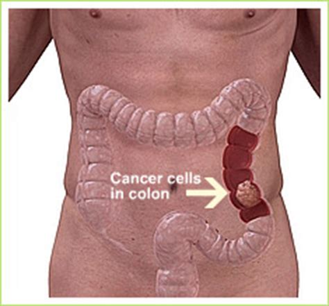 colon cancer and upper stomach pain picture 9