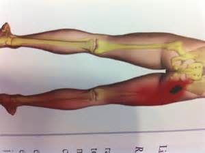 facet joint replacement picture 3