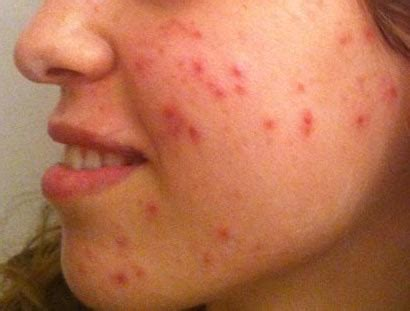 acne only on face picture 13