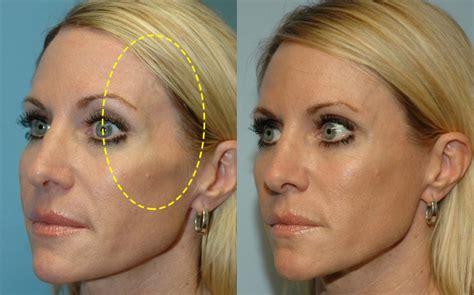 quintessence skin care picture 10