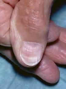 stigmata of chronic liver disease skin picture 6