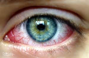 pink eye or bacterial conjunctivitis picture 14