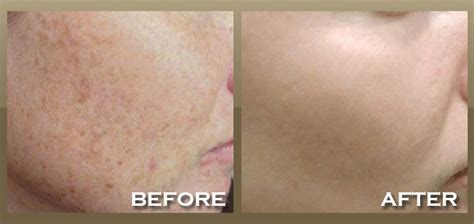 winter park laser & anti aging spa picture 5