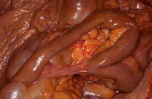 intestinal adhesions picture 9