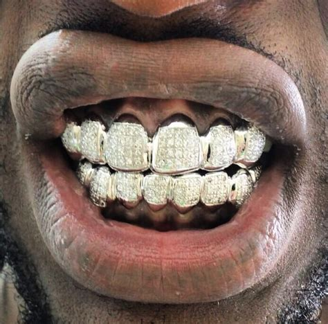 white gold teeth picture 1