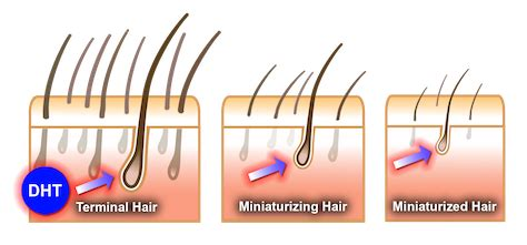 does testosterone stop hair growth picture 9