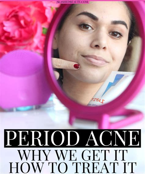 acne during period picture 11