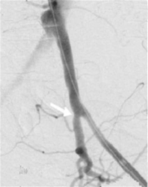 fistula vascular bladder picture 9