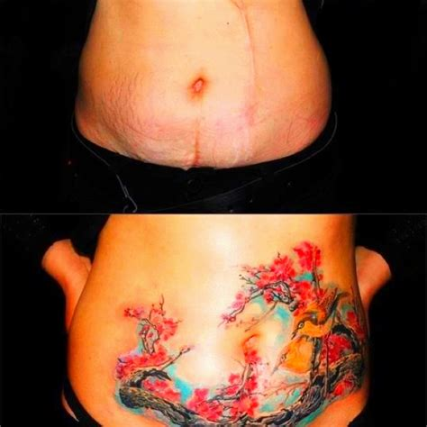 stomach tattoo to cover stretch mark picture 1