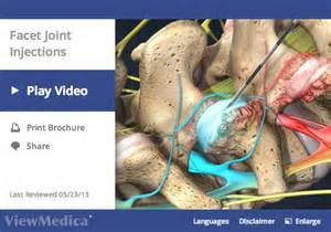 facet joint displacement and corrective surgery picture 1
