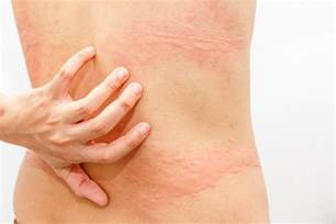 is hives and chronic itching side effect og picture 6
