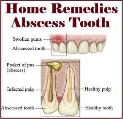abscess gum is draining repeatedly using oregano oil picture 6