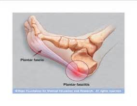 plantar picture 1