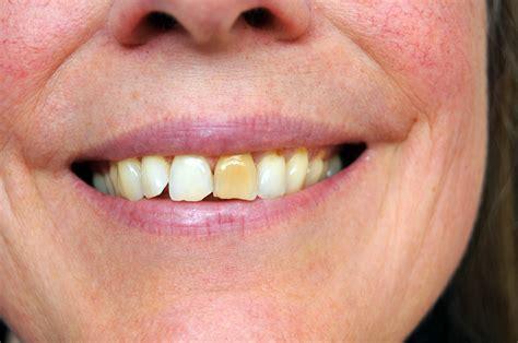 discolored teeth enamel effacia picture 13