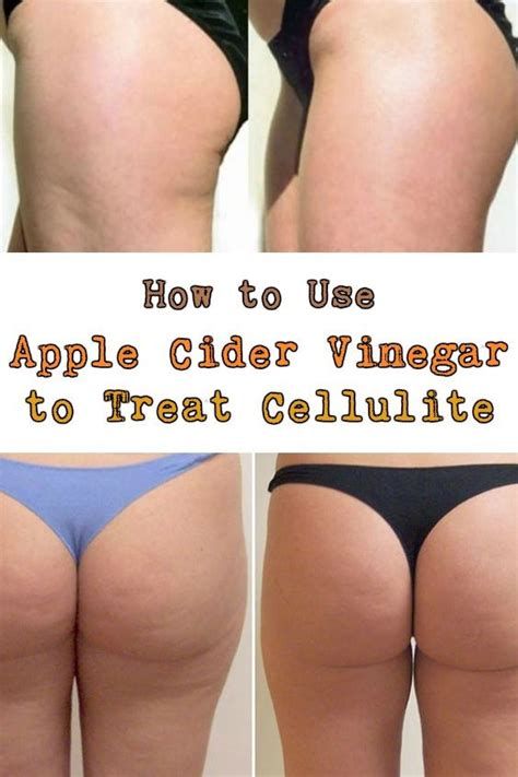 can weight training remove cellulite from legs picture 2