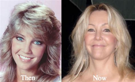 aging changes in body picture 7