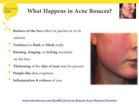 acne breakout symptoms of picture 6