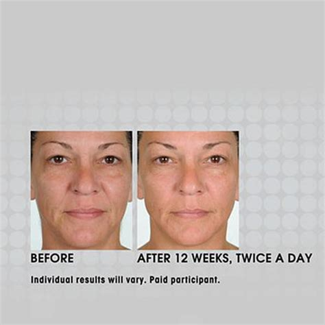anti-aging treatment prevage picture 14