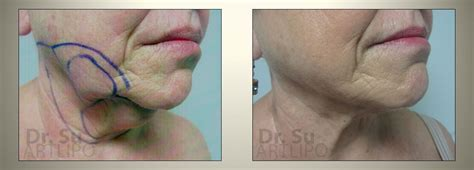 does an skin laser really work picture 6