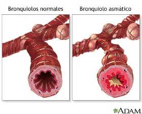 how does pco2 affect bronchial smooth muscle and picture 7