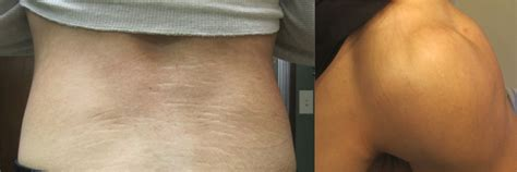 reducing abdominal fat and stretch marks picture 5