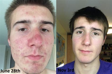 acutane for acne picture 1