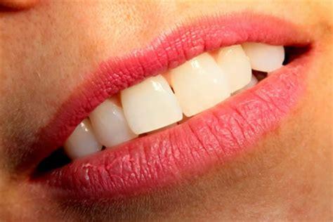 del mar teeth bleaching picture 14