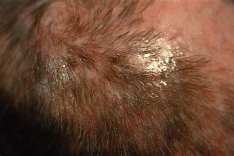 icd 9 hair loss picture 3