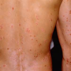 diabetic skin conditions picture 1