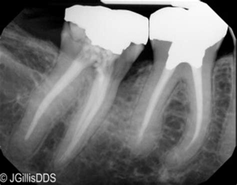 can root c teeth cause bad breath picture 5