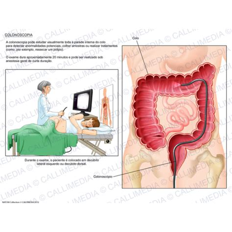 colon osicapy picture 11