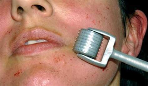 anti aging derma roller picture 13