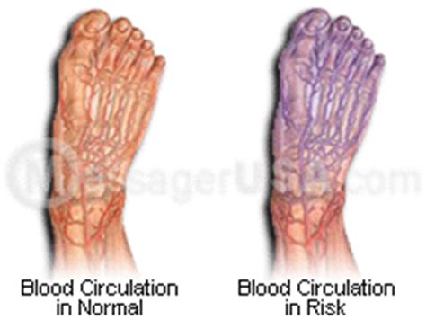 poor blood circulation in feet picture 5