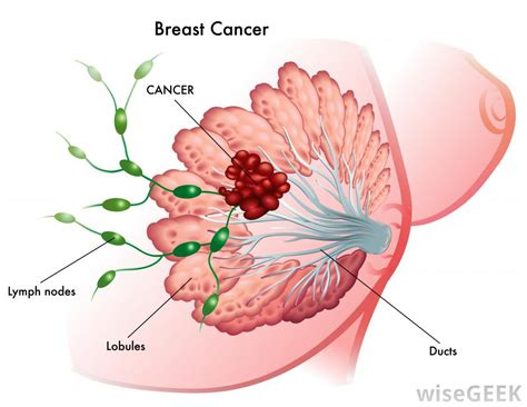 foods that burn breast cyst picture 11