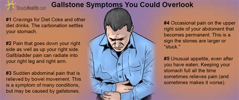 symptoms of gall bladder attack picture 3