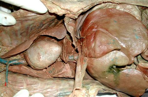 gall bladder symptoms after removal picture 14
