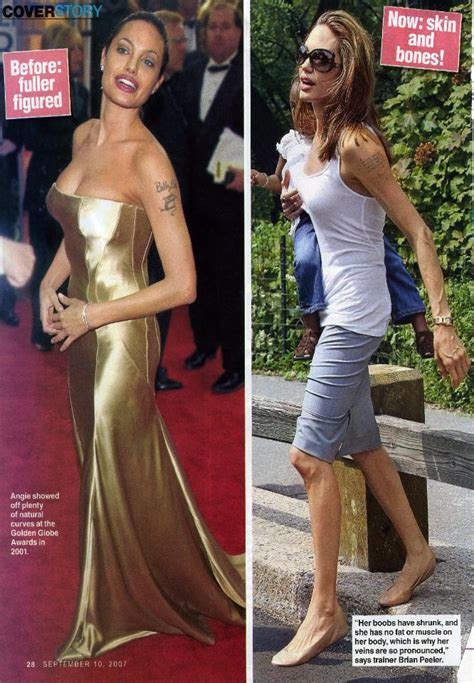 anorexic weight loss picture 7