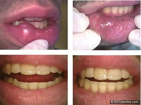 clotrimazole blistered lips picture 13